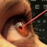 is laser surgery for eyes safe?