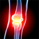 wood implants for joint health