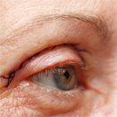 eye health