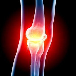 Osteoarthritis and inflammation