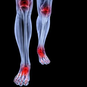 Restless leg syndrome a risk factor for heart and kidney problems