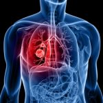 lung cancer risk in women