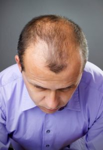 prevent-hair-loss