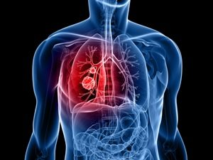 How does COPD affects your lungs?
