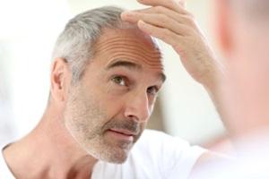 natural-remedies-for-hair-loss