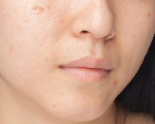 natural-remedies-for-adult-acne