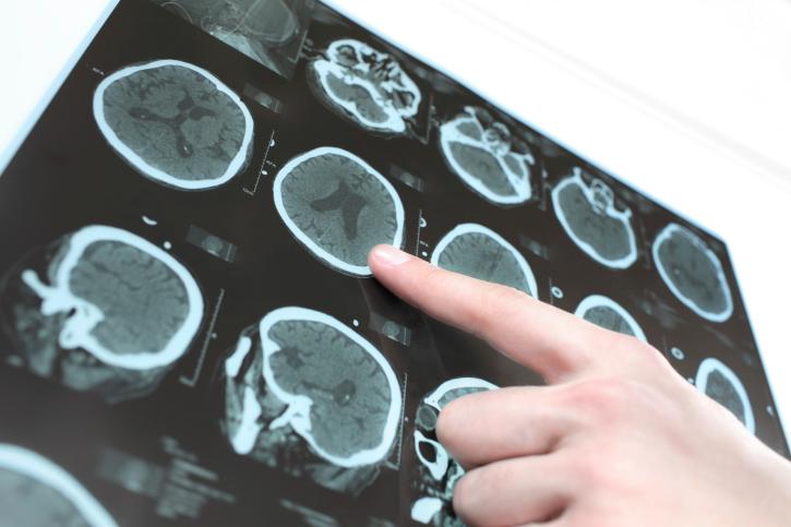 Factors that cause Parkinson's disease