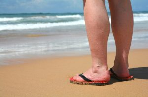 causes of swollen feet