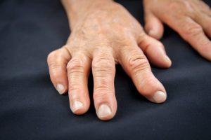 Mood affects pain rheumatoid arthritis