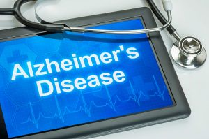 Iron containing cells in brain of alzheimer's patient