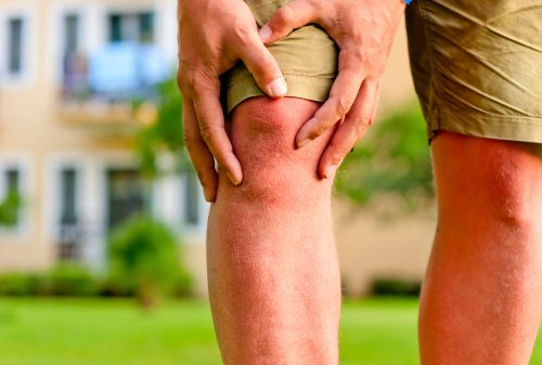 Symptoms and risk factors of rheumatoid arthritis