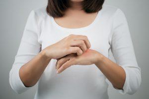 eczema arthritis drug