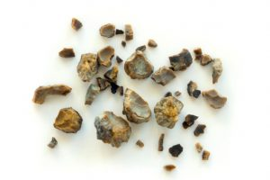 kidney stones treatment with tamsulosin