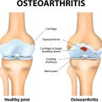 Effects of osteoarthritis pain on the body