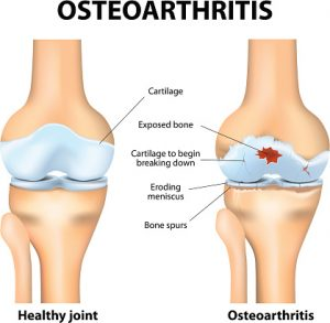 Osteoarthritis Vs Osteoporosis Facts About Osteoarthritis