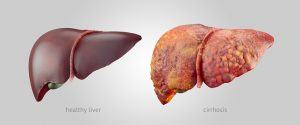 Cirrhosis causes, symptoms and prevention