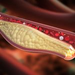Menopause increases atherosclerosis risk by affecting good cholesterol