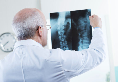 Facts about osteoporosis fractures