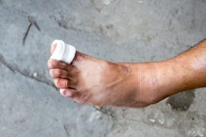 Get the Facts on Foot Ulcers