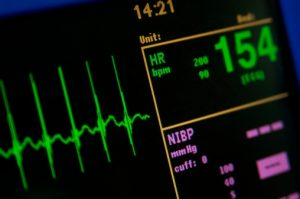 Causes, symptoms and treatment of heart palpitations