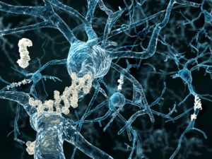 Understanding Alzheimer's disease plaques in brain easier with amyloid protein cues