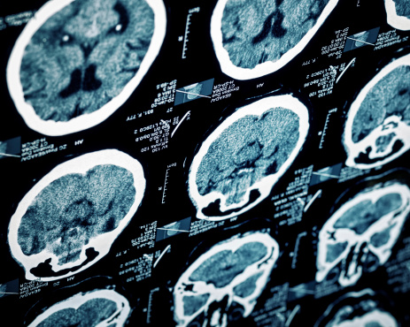 Hypertension drug blocks traumatic brain injury (TBI) inflammation caused by liver