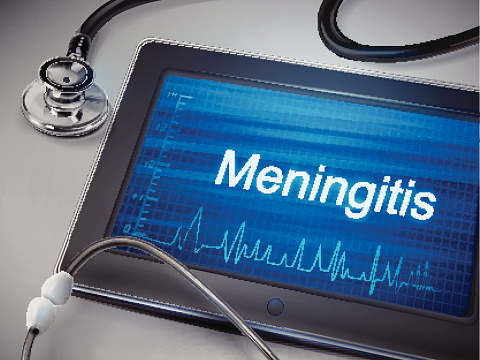 Meningitis in Adults Symptoms Signs Causes amp Treatment