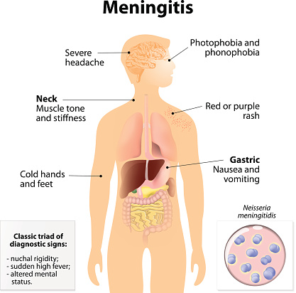 Aging adults at risk for meningitis, too
