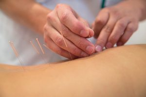 Acupuncture tops drugs for back pain relief: Study