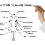 Obstructive sleep apnea symptoms in women