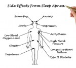 Sleep apnea can cause brain damage