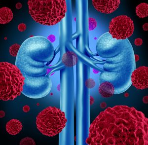 Over one-third of lupus patients get lupus nephritis