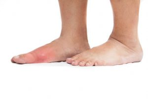 14 Natural remedies for gout pain relief