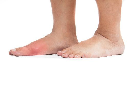Presence of tophi in people with gout can increase risk of cardiovascular disease