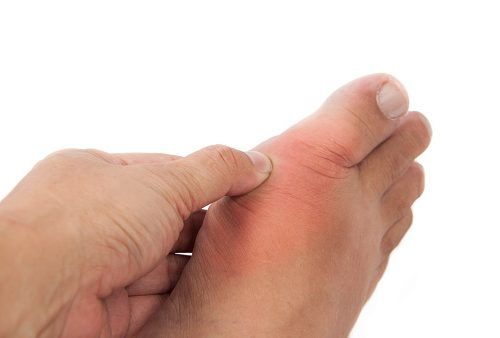 Treatment for tophi with gout