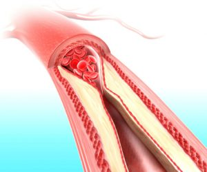 Atherosclerosis heart stroke tool developed