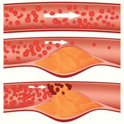 Menopause lowers good cholesterol (HDL) protection, raises atherosclerosis risk in women