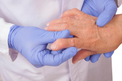 Rheumatoid arthritis and lupus confusion