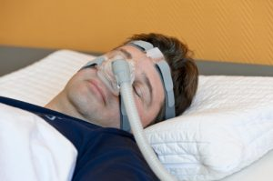 Sleep apnea, sleep disordered breathing (SBD) and stroke risk