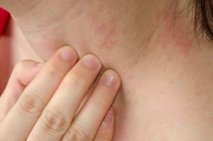 Large study outlines role of genome in eczema