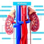 Iron deficiency, anemia and chronic kidney disease