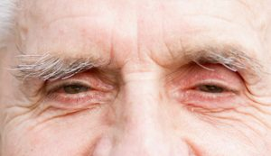 Common eye problems and diseases in aging adults