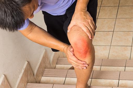 How rheumatoid arthritis affects the synovium