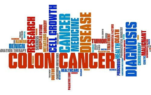 Changes in colorectal cancer screening guidelines suggested for aging seniors