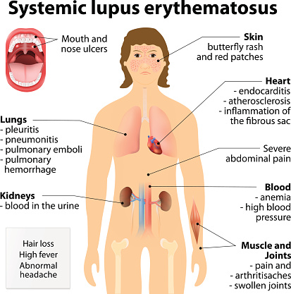 vasculitis, inflammation of blood vessels and the risk of lupus, Skeleton