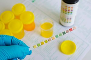 At home diabetic test: Urine test