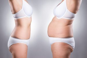 Success of weight-loss surgery determined by insulin cells