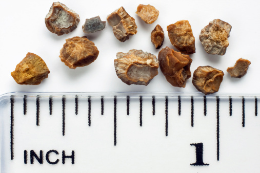 Previous Study Shows Link Between Gallstone And Kidney Stone Risk