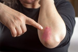 Psoriasis skin disorder inflames arteries, increases heart disease risk
