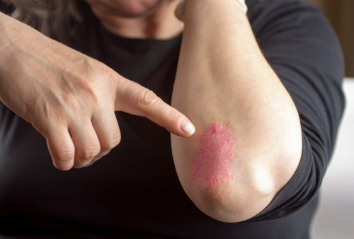 Psoriasis skin disorder inflames arteries, increases heart disease risk